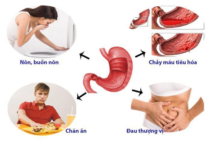 triệu chứng ung thư dạ dày