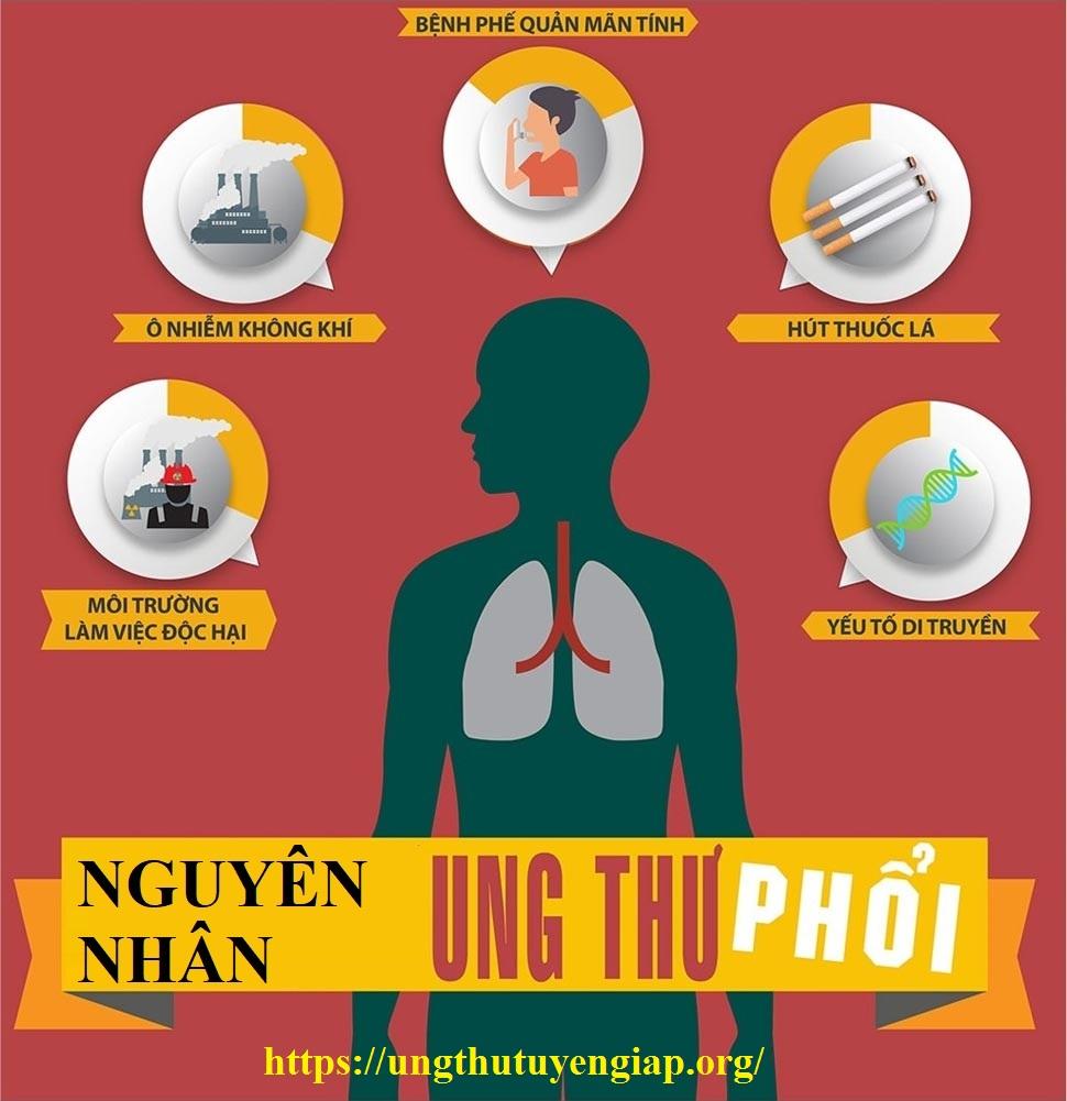 nguyên-nhân-ung-thư-phổi