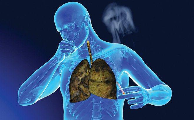 thuốc lá gây ung thư phổi