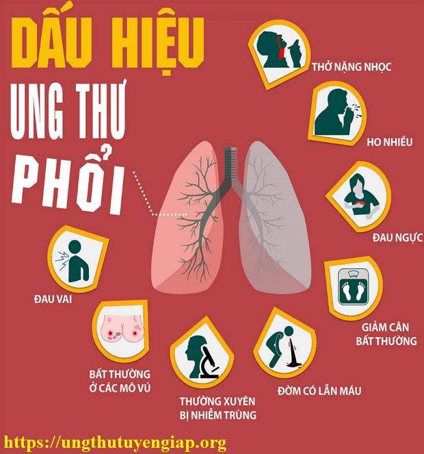 triệu-chứng-ung-thư-phổi