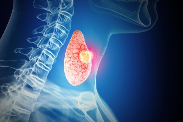 ung thư tuyến giáp thể nhú